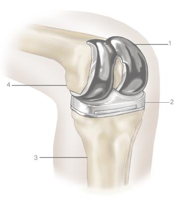 2.-Knee-replacementA